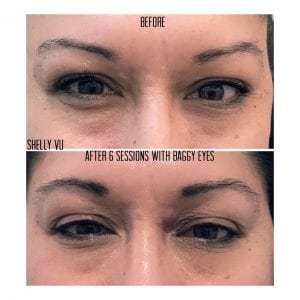 wrinkle-reduction_7691-min